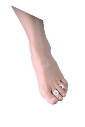 El anillo protector para pies diabéticos