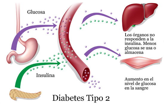 Diabetes tipo 2. Parte 1. - Vida Abuelo